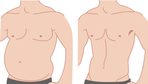 male liposuction lawrenceville