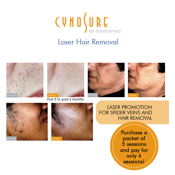 Laser Hair Removal with Cynosure